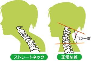 頸椎の歪み